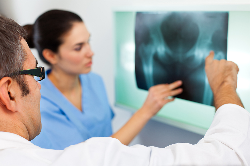 What You Need to Know About Hip Fractures